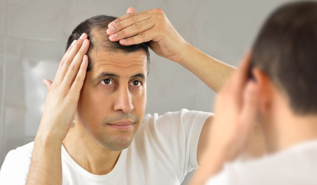 Frustrated by your hair loss and need a quick solution?